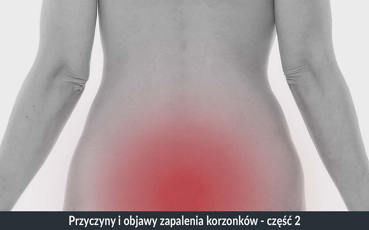 korzonki objawy zapalenia korzonków