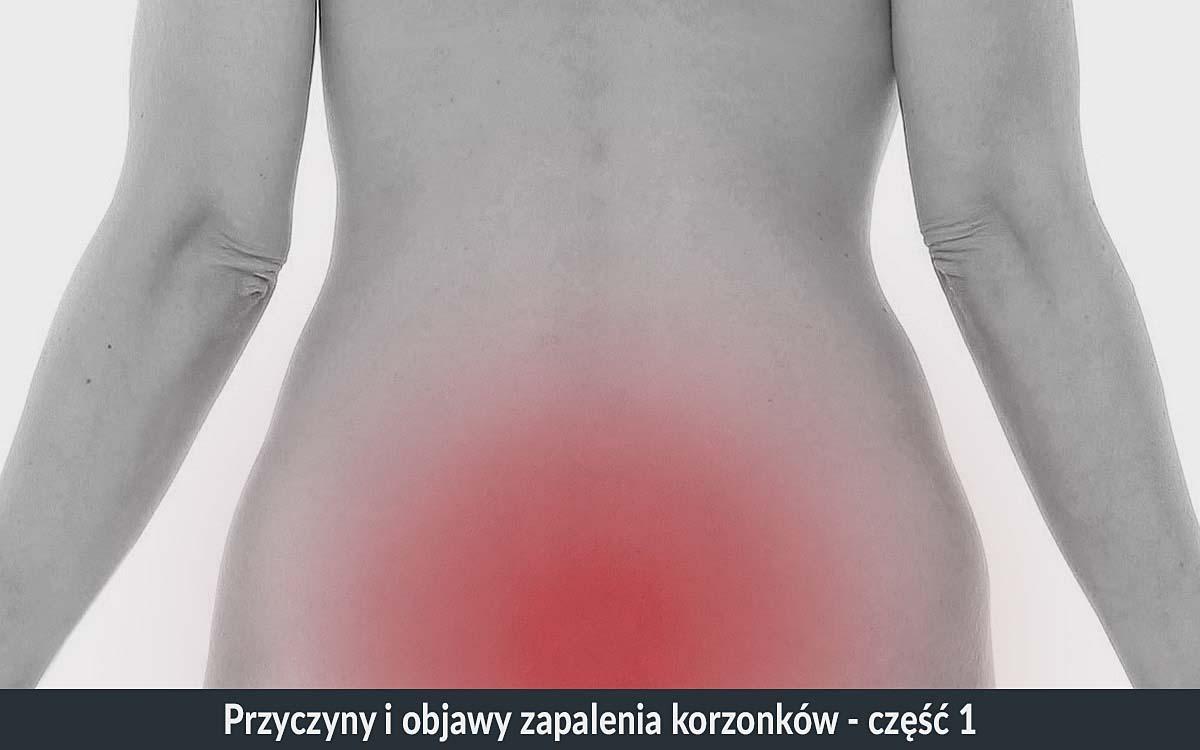 korzonki przyczyny korzonki objawy zapalenia korzonków