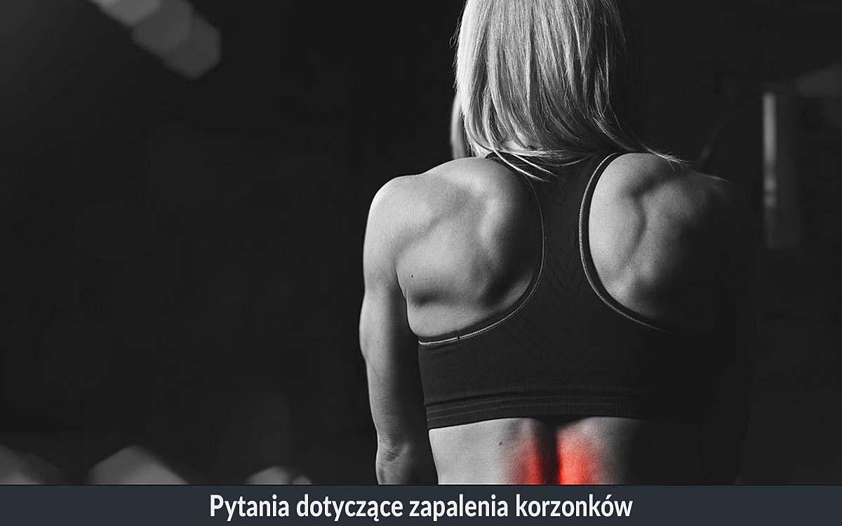Zapalenie korzonkow nerwowych pot. korzonki