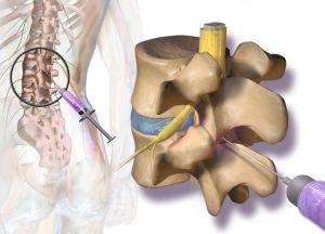 Rwa kulszowa blokada sterydowa bólu